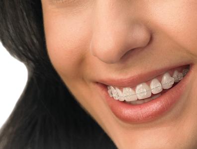 aparelho ortontico